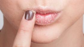 Canlı dudaklar için ballı peeling!